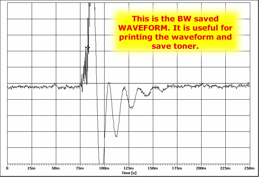 vacuum transducer waveform 3